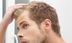 Боремся с проблемами кожи головы: рейтинг лучших шампуней против перхоти 2020 года