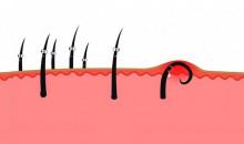 Гладко всегда и везде: рейтинг лучших средств против вросших волос после эпиляции и бритья на 2020 год
