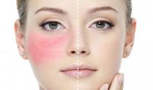 Рейтинг лучших средств от аллергии по отзывам покупателей и мнению аллергологов