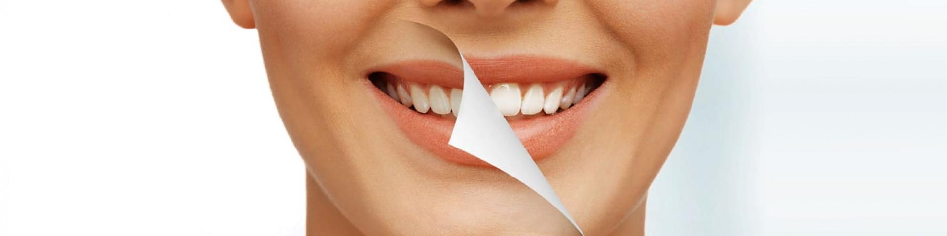 Для улыбки на все сто: рейтинг лучших отбеливающих зубных паст 2021 года