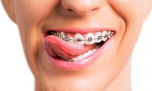 Исправляем зубные несовершенства: рейтинг лучших брекет-систем 2020–2021 года