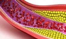 Надёжная защита сердца и сосудов: рейтинг лучших таблеток от холестерина в 2020 году