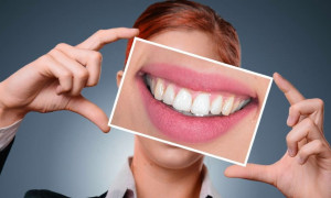 Улыбка из Голливуда или рейтинг самых эффективных зубных паст от пародонтита и пародонтоза на 2020 год