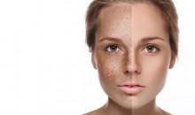 Рейтинг лучших отбеливающих кремов для лица в 2020 году: самые эффективные средства для красивой кожи
